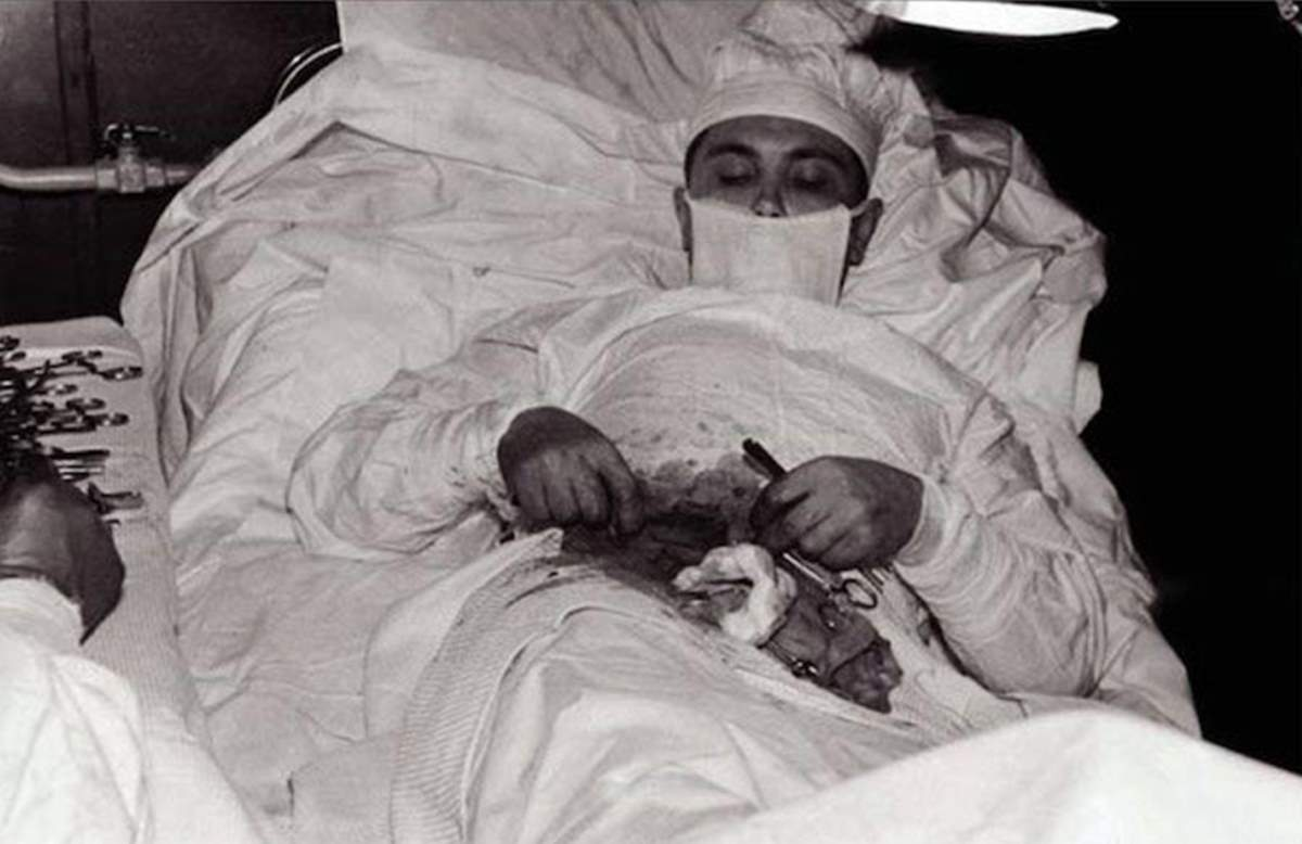 Leonid Rogozov self surgery in Antarctica